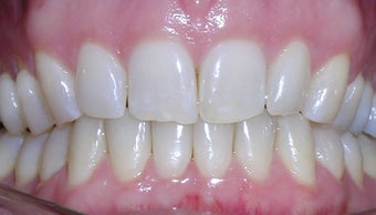 Invisalign used to correct flaring and overlapping teeth