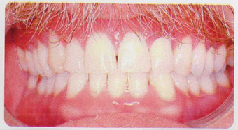 Low incisor extraction