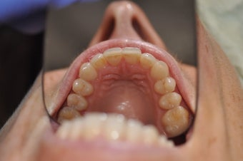 Moderate anterior crowding treated with Invisalign