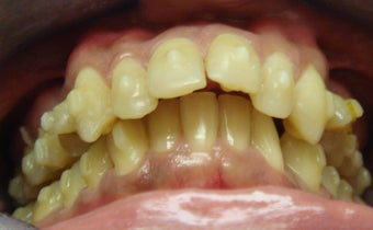Invisalign Treatment