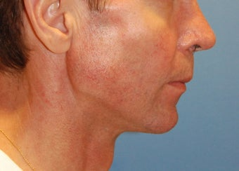 Jaw Augmentation with Mandibular Implants