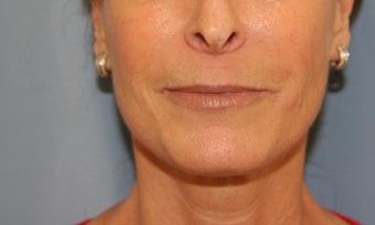 Juvederm injection