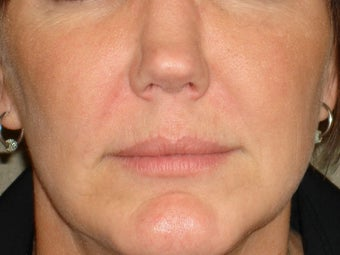 Treatment of prominent nasolabial folds with a dermal filler