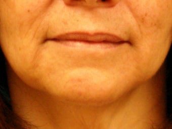 Treatment of marionette lines with a dermal filler