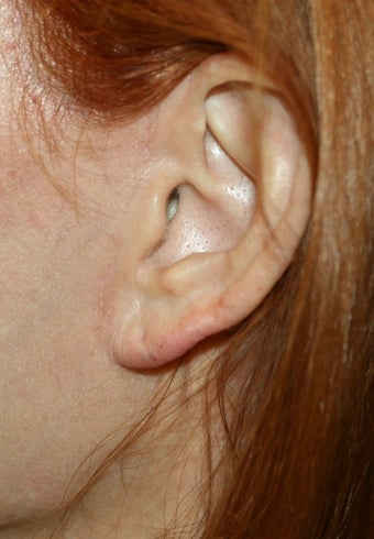 Earlobe filler