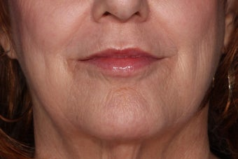 Juvederm Lip Enhancement