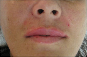 Juvederm for upper lip and nasolabial folds
