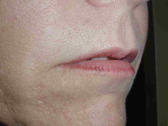 Juvederm to upper lip