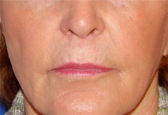 Juvederm for Lip Border and Lip Lines