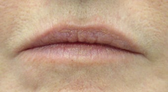 Juvederm and Botox to lips