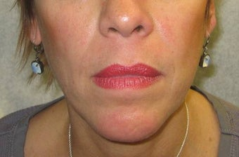 Juvederm for lines around the mouth