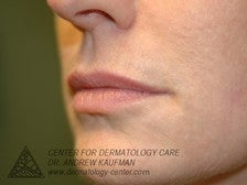 Juvederm Injection to Augment Lip Line