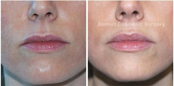 Juvederm: Subtle Lip Enhancement