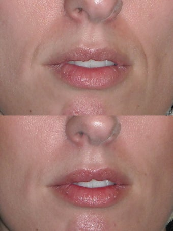 Filler to nasolabial folds