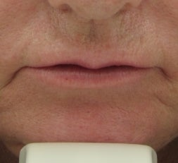 63 year old lip Augmentation with Juvederm
