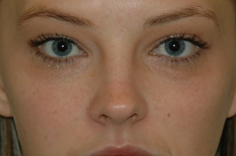 Juvederm injected under the eyes