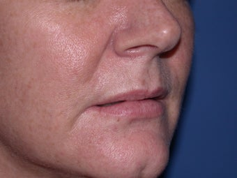 Before and After Lip Juvederm