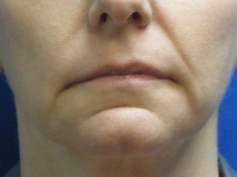 Juvederm chin and lip enhancement