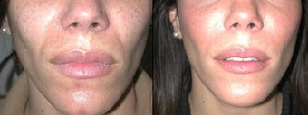 Juvederm to Laugh Lines