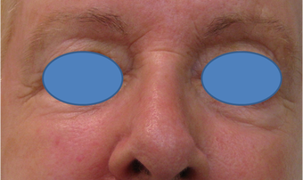 Juvederm Filler for lower eyelid hollows