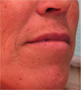Juvederm to the upper lip