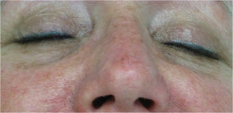 Juvederm for lower eyelid hollows