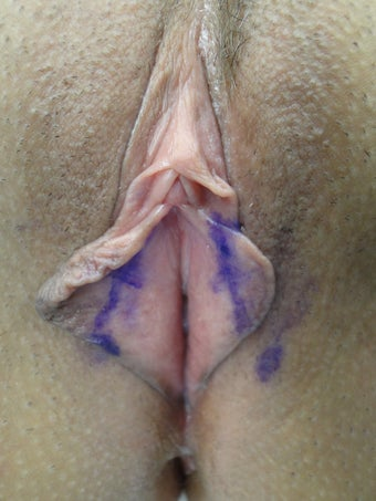 Labia Minora Reducation Surgery