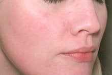 Laser Genesis for Overall Redness