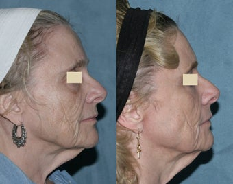 Fraxel repair with C02/Erbium lasers for upper lip wrinkles