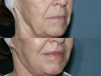 Face and Neck Fraxel repair with C02/Erbium lasers for upper lip wrinkles