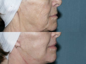 Fraxel repair with C02/Erbium lasers for facial wrinkles