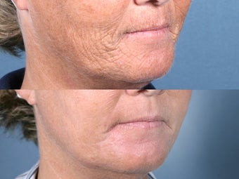 Laser Resurfacing for mouth wrinkles