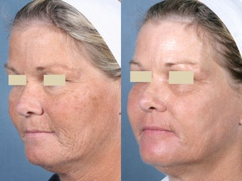 Laser Peel Treatments