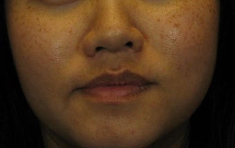 Laser Peels and More Perfect for Ethnic Skin Tones