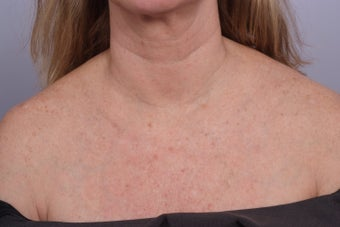 decollete laser resurfacing