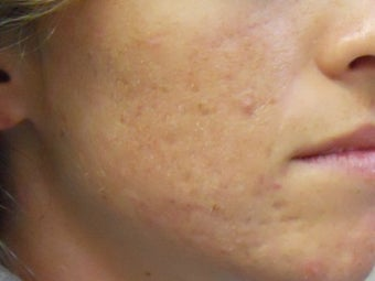 Acne Scars with Laser Resurfacing