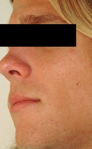 Laser Resurfacing for Enlarged Pores