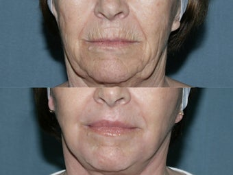 Fraxel repair on full face and neck with Erbium and CO2 lasers for upper lip wrinkles