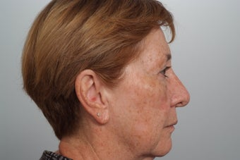 Laser resurfacing for dyschromia (brown spots)