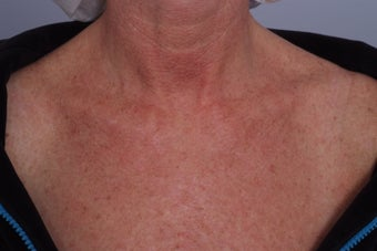 Laser treatment to Chest