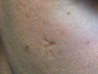 Acne scars treated with Punch Elevation of scars and Fractional Laser Resurfacing