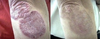 Psoriasis treatment to the arm