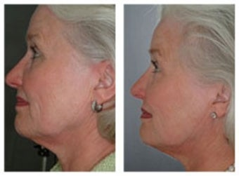 Skin tightening with laser therapy