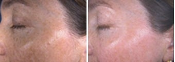 IPL for hyperpigmentation and freckles on face