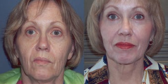 CO2 Laser skin resurfacing