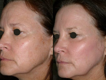 Juvia fractional CO2 resurfacing