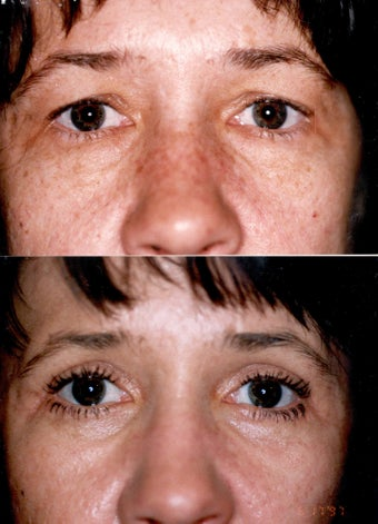 Blepharoplasty and Full Face CO2 Laser Resurfacing