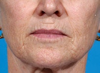 Laser resurfacing-Erbium ablative resurfacing