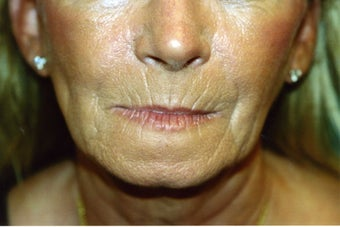Laser Skin Resurfacing with Dr. Clevens