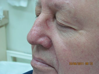Laser vein treatment of veins on the nose